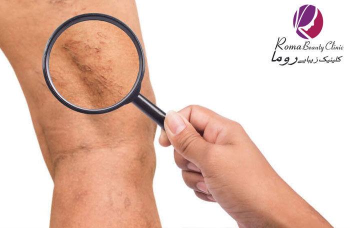 درمان واریس با لیزر