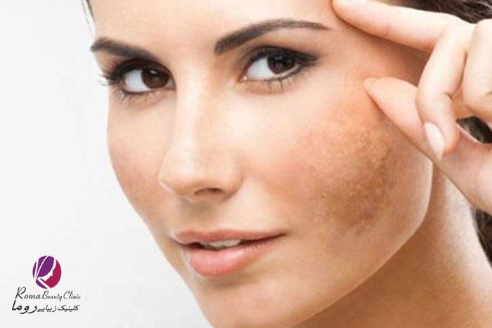 درمان لک صورت و بدن